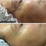 Dermapen 3 Before and After Image for Skin Rejuvenation