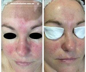 Before and After image Rosacea