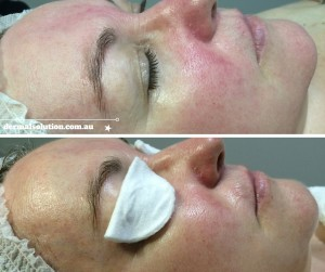 Before and After Rosacea Image