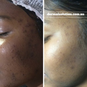 Combination therapy utilising a program of Dermapen treatments, Pro. Dermal Planning and prescribed homecare program